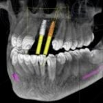 The Ti-MAX Institute Core Implant Program