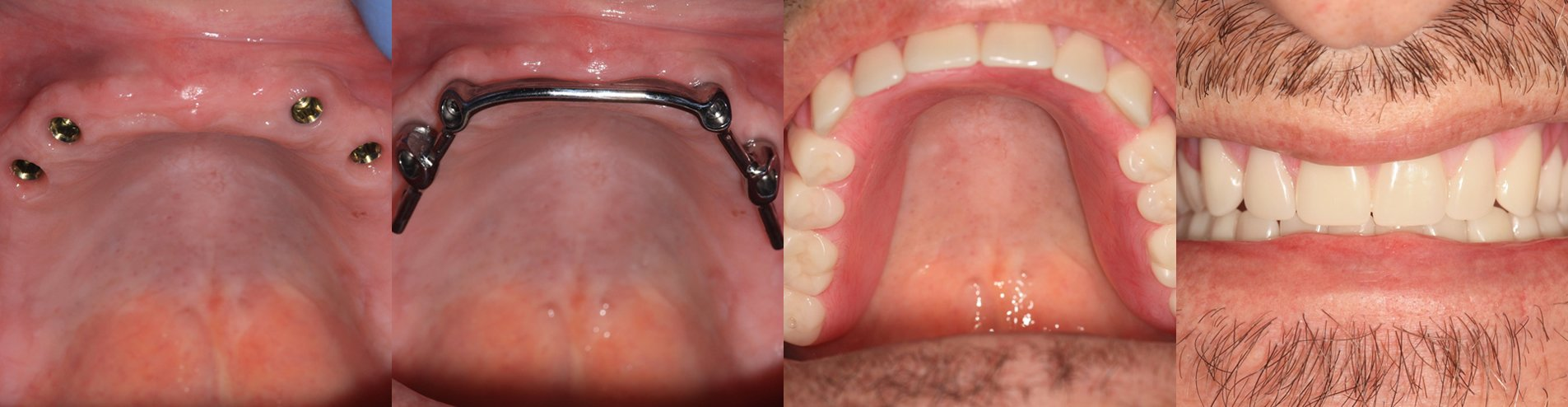 The Ti-MAX Over-Denture Course